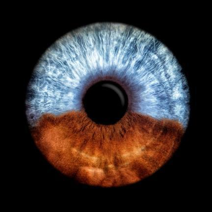 eine Iris mit 2 unterschiedlichen Farben braun und blau